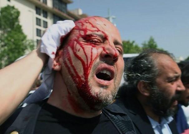 Turkey_Protest_0dd4c